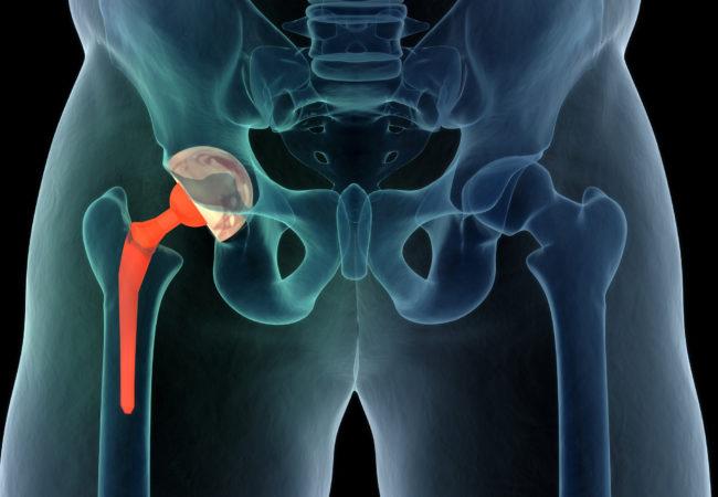 Hip replacement surgeon clovis ca