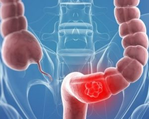 colon cancer surgery singapore